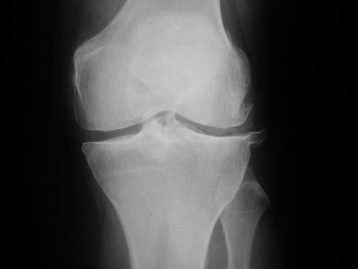 artrosis.jpg