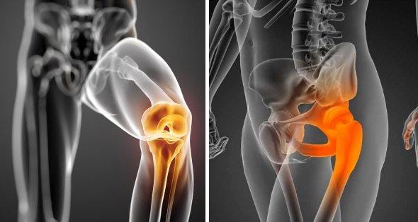 tratamiento_artrosis.jpg